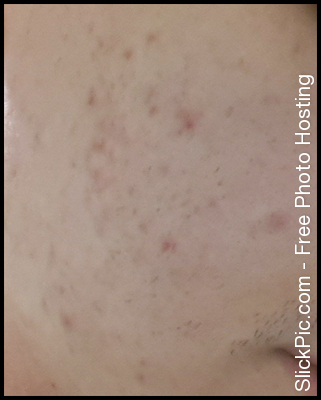 acne_face.jpg